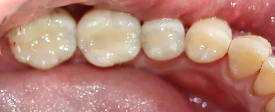 White Tooth Fillings