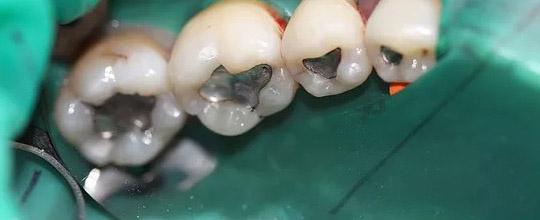 Mercury tooth fillings