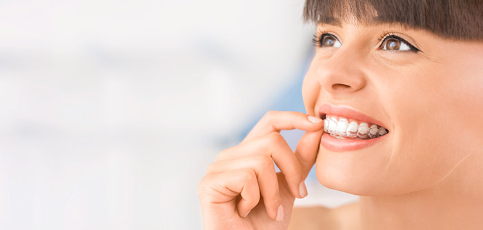Woman Wearing Orthodontic Silicone Trainer. Teeth strengthening