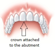 Crown attached to the abutment
