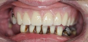 same day dental implant teeth after all the upper teeth have received extractions