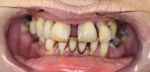 same day dental implant teeth