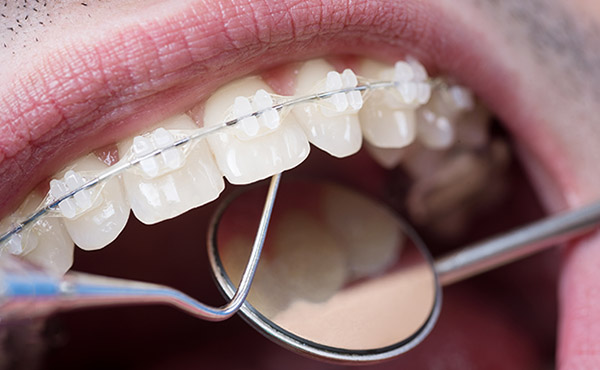invisible clear teeth straightening with invisalign braces