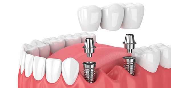 Jaw And Implants With Dental Bridge