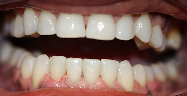 lower arch straightened teeth
