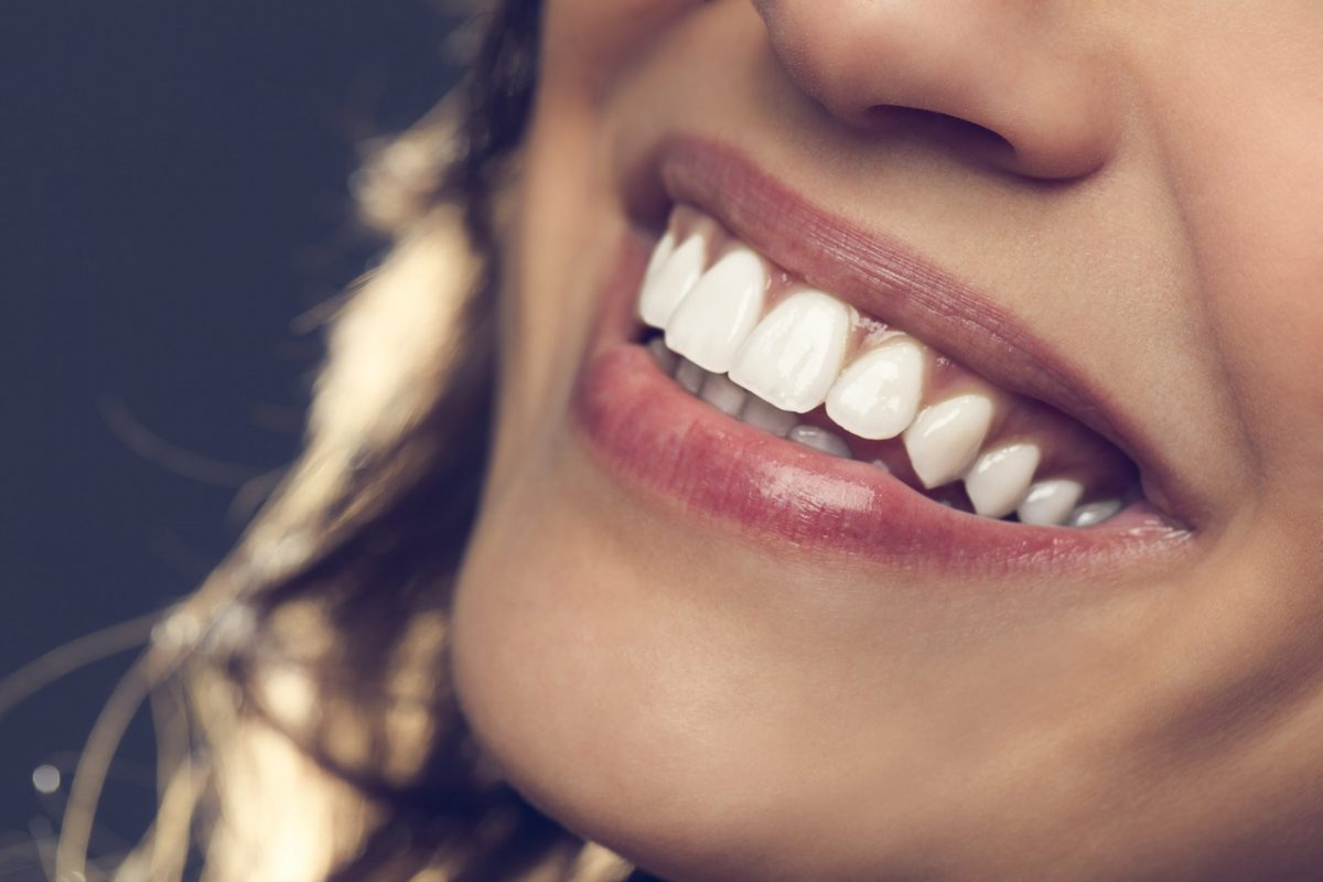 lady smiling with natural white teeth