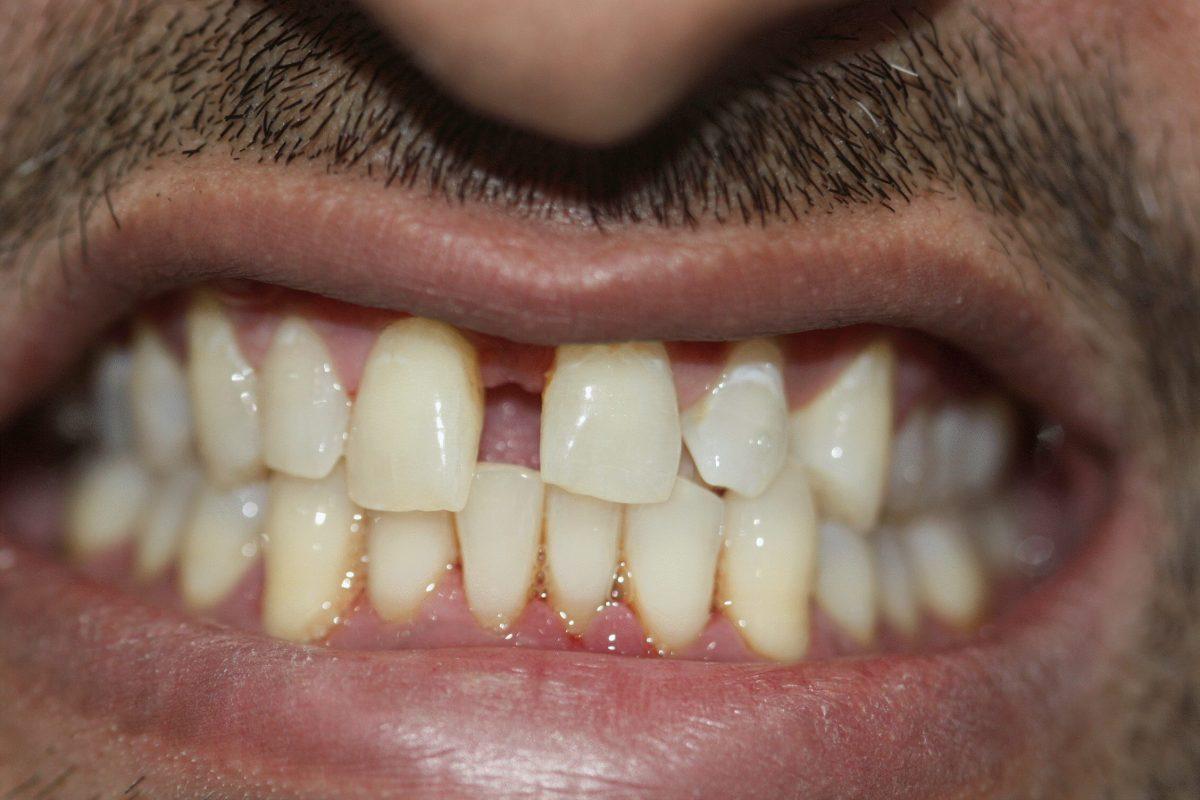 gaps before cosmetic bonding