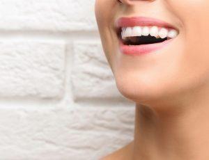 full jaw implants