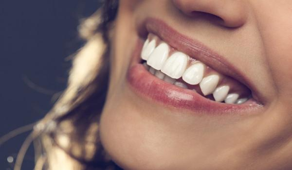dentist in watford providing porcelain veneers, cosmetic bonding and teeth whitening in hertfordshire