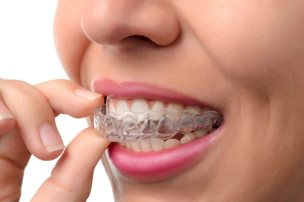 dentist in watford providing braces, invisalign, ultra clear braces and 6 month smiles in hertfordshire