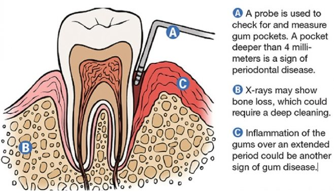 periodontal disease signs